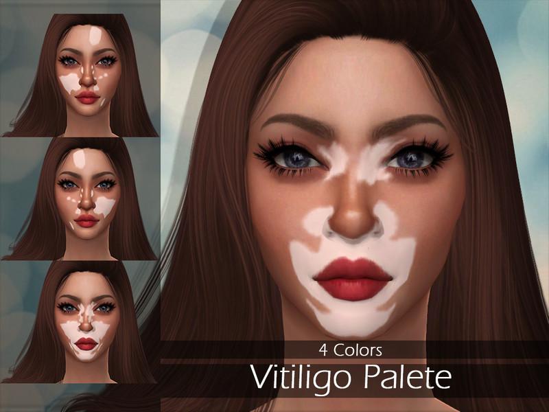 Lisaminicatsims Lmcs Vitiligo Palette